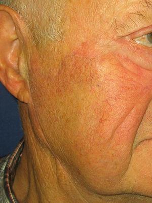 Réparation du nez