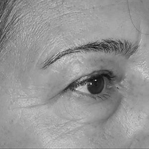 Paupières supérieures et poches sous les yeux avant intervention