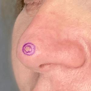 Carcinome basocellulaire du nez