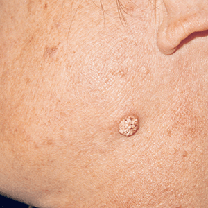 Carcinome spinocellulaire sur la joue