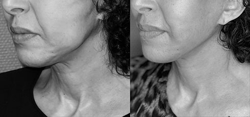 Avant Après lifting du visage