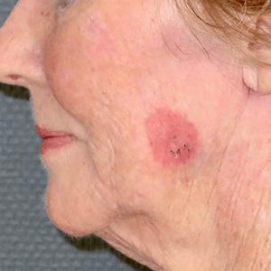 Carcinome spinocellulaire superficiel étendu de la joue
