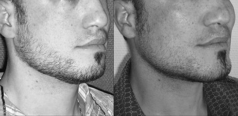 Implants des pommettes et menton