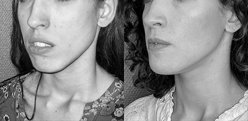 ostéotomie maxilaire